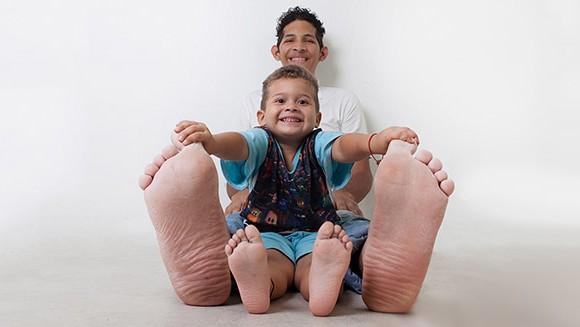 Jeison Orlando Rodríguez Hernández, el hombre con el pie más grande del mundo